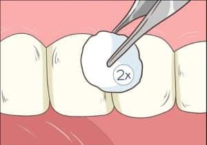 comment arracher une dent de lait